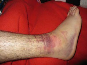A standard ankle sprain