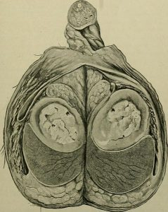 A cross-section cut of human testicles.